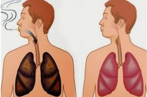 How to Eject Nicotine from the Body ?